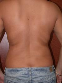 Body Contouring Case 107 - VASER Lipo, Back