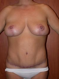 Body Contouring Case 110 - Tummy Tuck