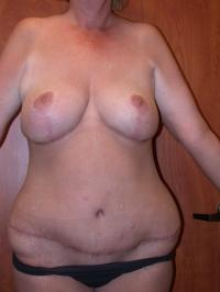 After Massive Weight Loss Case 120 - Breast Lift