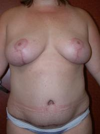 Breast Surgery Case 126 - Breast Lift
