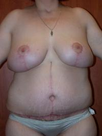 After Massive Weight Loss Case 144 - Tummy Tuck
