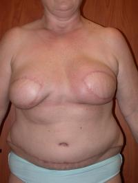 Breast Reconstruction Case 146 - TRAM Flap