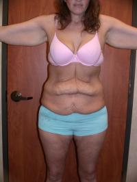 Body Contouring Case 150 - Extended Tummy Tuck
