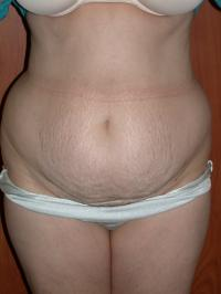 Body Contouring Case 153 - Tummy Tuck